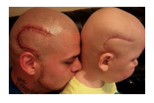 Kansas dad gets tattoo to match son s brain cancer surgery for Tattoo shops junction city ks